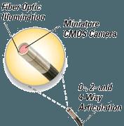 teknikken bag endoskop stift video